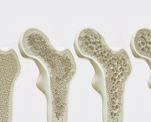 bone health during the menopause